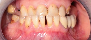 Dental implantation and prosthetics